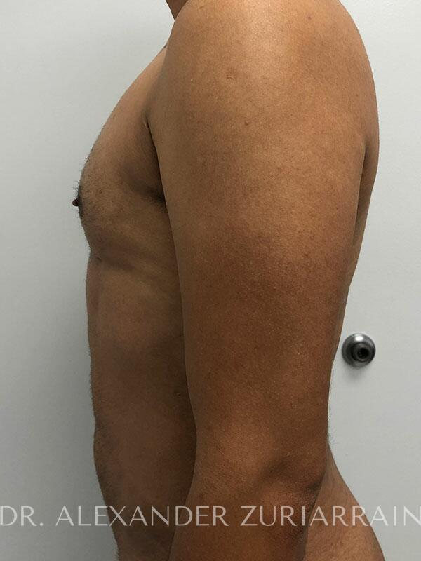 High definition liposuction before & after photo