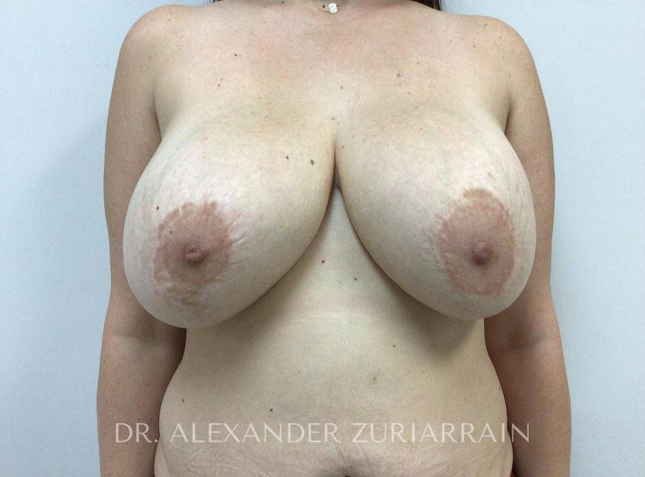 Breast revision before & after photo